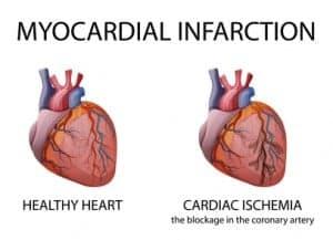 Heart. Myocardial infarction.